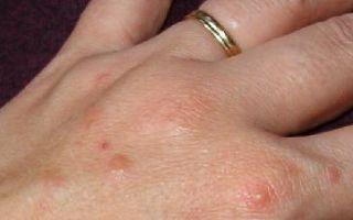 Дисгидроз кожи — причины, симптомы, лечение
