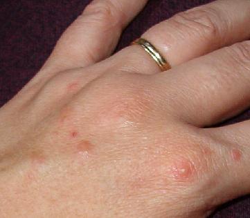 Дисгидроз кожи