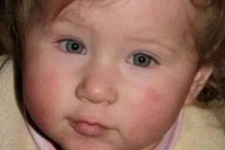 Аллергическая крапивница у детей